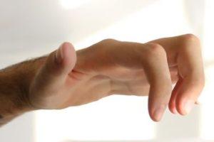 L'apertura della mano da parte della persona sottoposta all'intervento di trasposizione nervosa (o neurotizzazione)